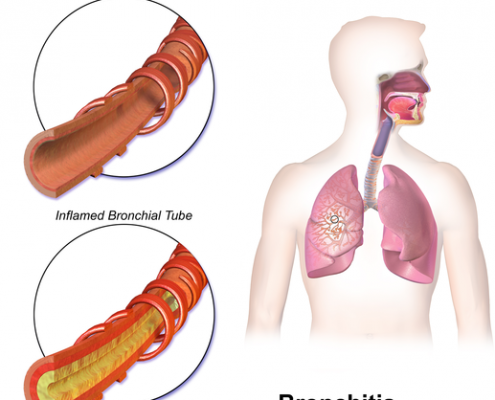 Is Bronchitis Causing Your Chronic Cough?