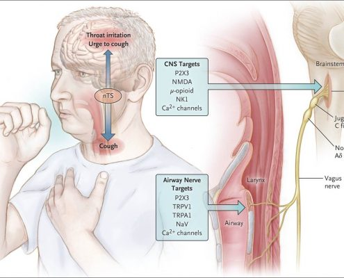 Cough Hypersensitivity Syndrome is the underlying cause of Chronic Cough.  When it is present, common conditions such as asthma, GERD, and postnasal drip can result in Chronic Cough.